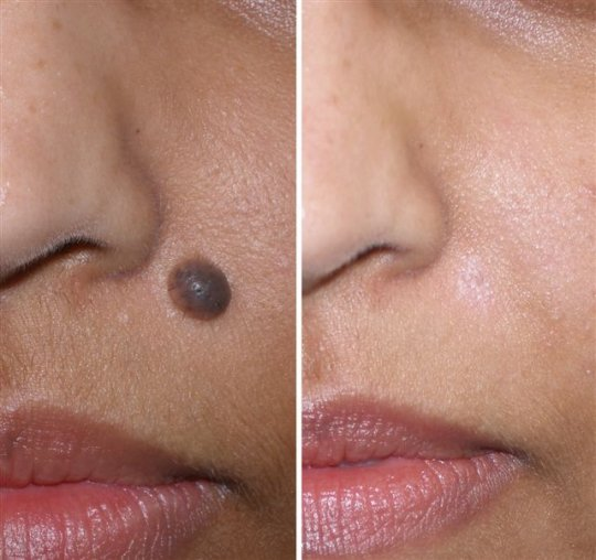 mole-removal.jpg