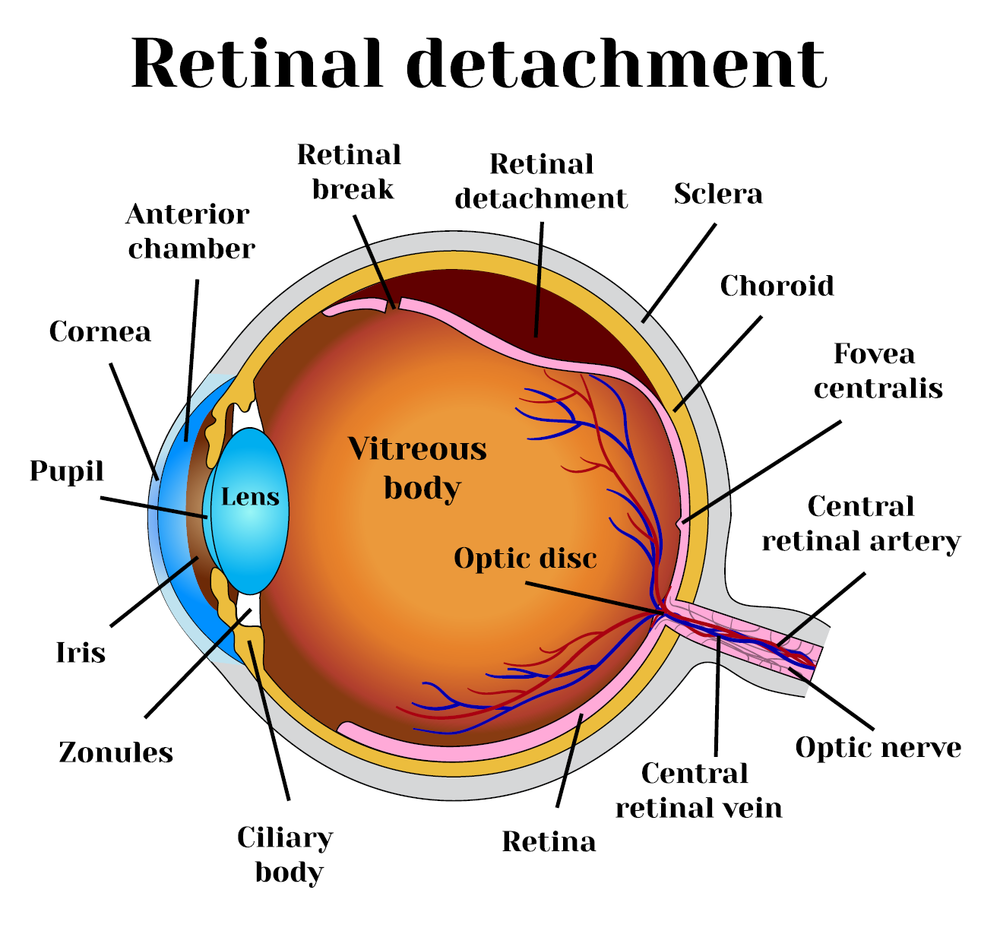 Retinal Detachment & Vision Doctor