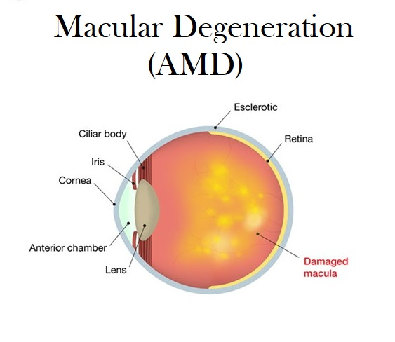 Macular Degeneration of the Eye / Age Related Macular Degeneration