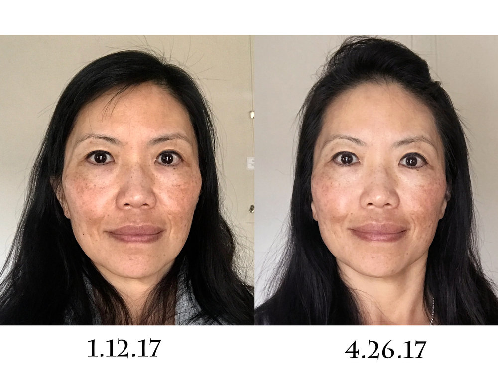 This Was Fall Of 2016 And I Immediately Implemented Face Yoga Into My Skincare Regime Taking Before After Photos Helped A Great Deal In Measuring The