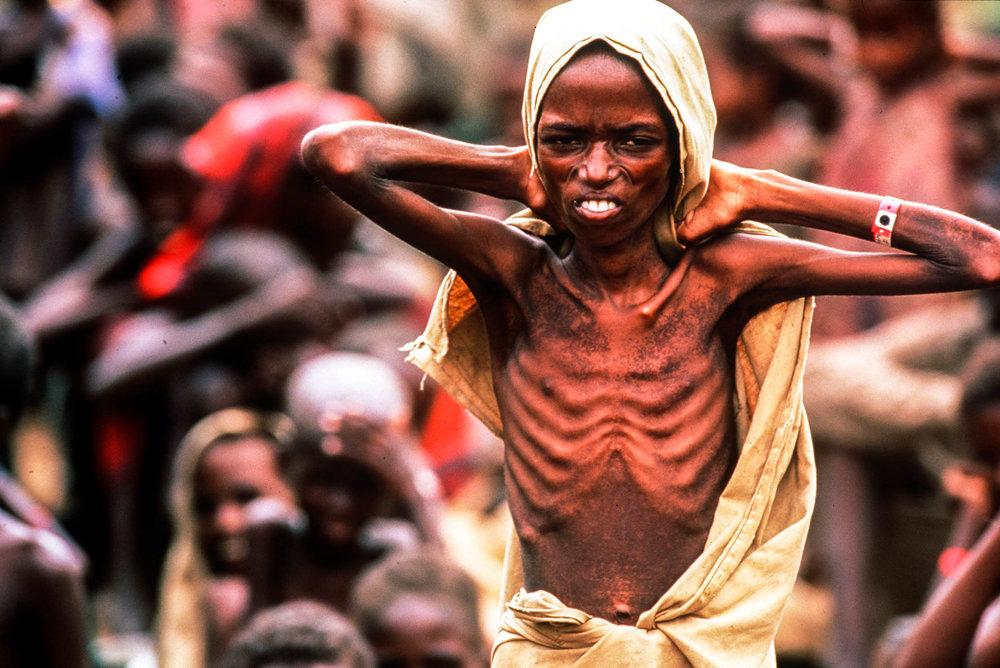 Bardera,  Somalia - December 1992 An everyday scene in Somalia: the sight of a boy all skin and bones doesn't shock anyone.