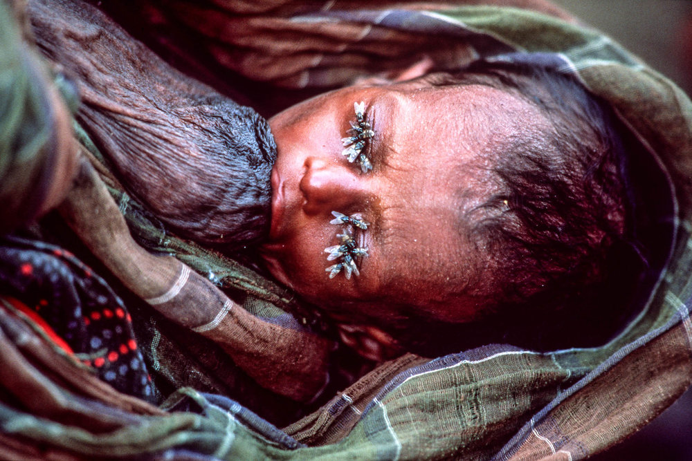 Bardera, Somalia - December 1992 A child with his eyes covered by flies, tries to drink milk from the mother's shriveled breast.