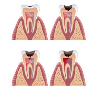 The stages of Tooth Decay that can lead to Root Canal Treatment