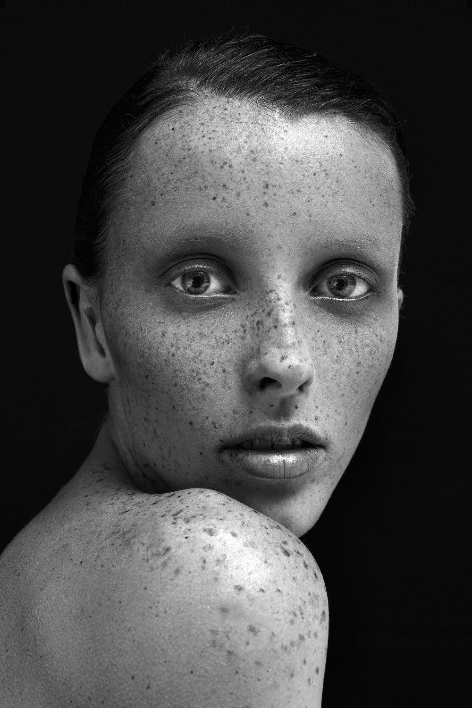 Freckled Face