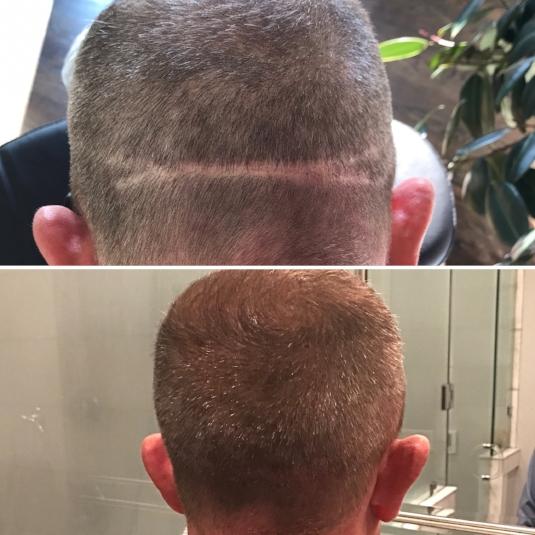 scalp micropigmentation   scar camouflage   hair transplant scar