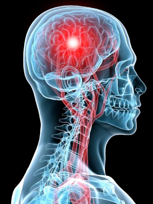 Concussion Head.jpg