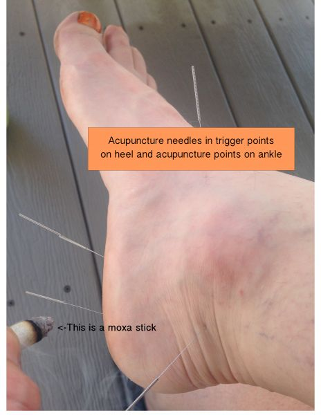 Acupuncture and self care for plantar fasciitis or what i did on my its not easy to needle your own feet i had friends and family sit nearby chatting with me to distract me id needle myself and do solutioingenieria Image collections