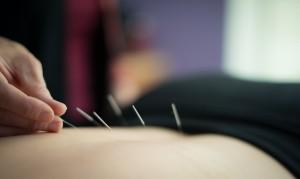 Denise needling back shu points (by Chloe Jackman Photography)