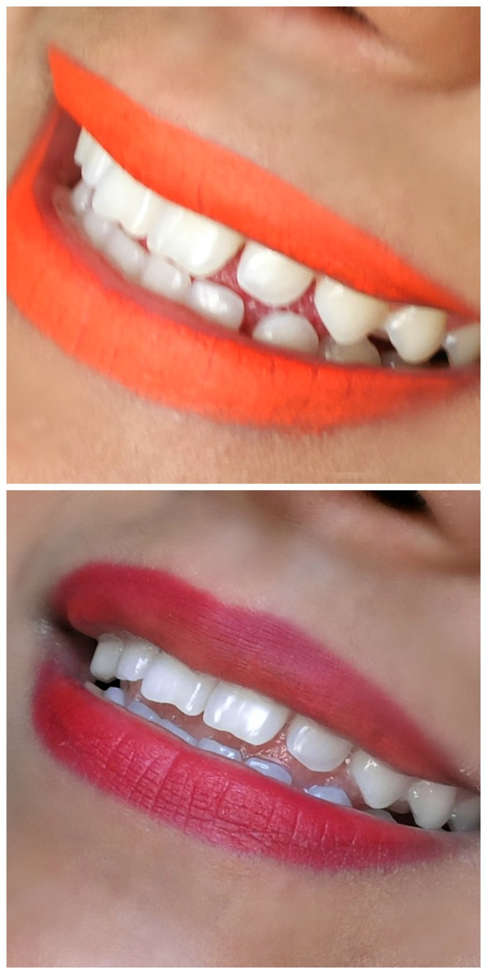 Before and After Results  - The two photos were taken before trying Smile Brilliant and then after (a few days ago). The photos were taken in different lighting so the color temperature may seem different but the results are obvious!