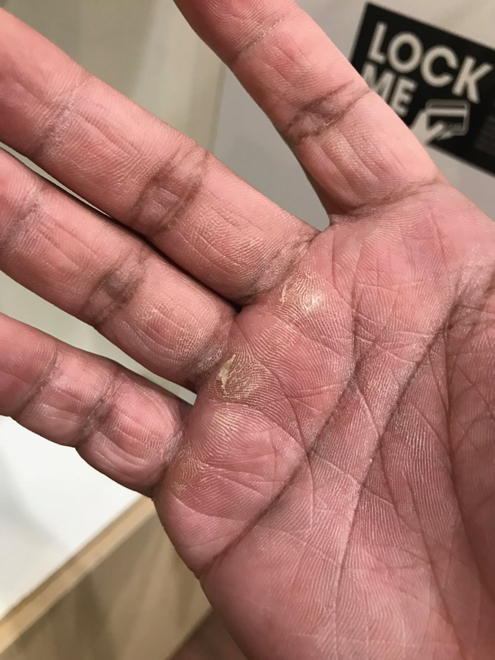 Weak ass hands after doing pullups