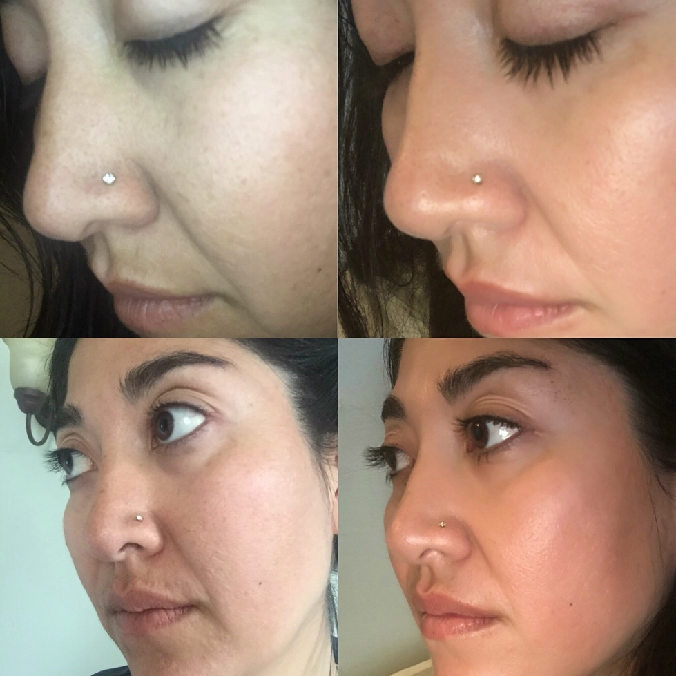 Left: BEFORE Right: AFTER!!  Brighter/ more clear/ firm skin!! And look at those lashes!!!  *** I use the Redefine Regimen / Lash Boost/ Hydration Serum / Multi Function Eye Cream