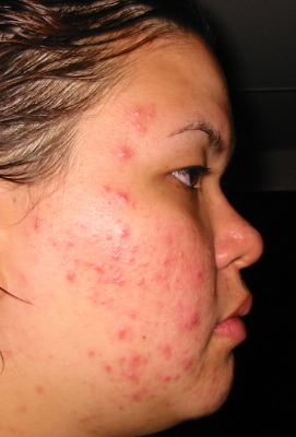 Left-side cystic acne, with flash