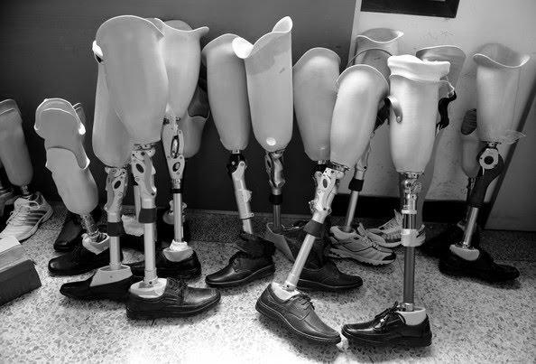 Prosthetic plastic legs 1980s