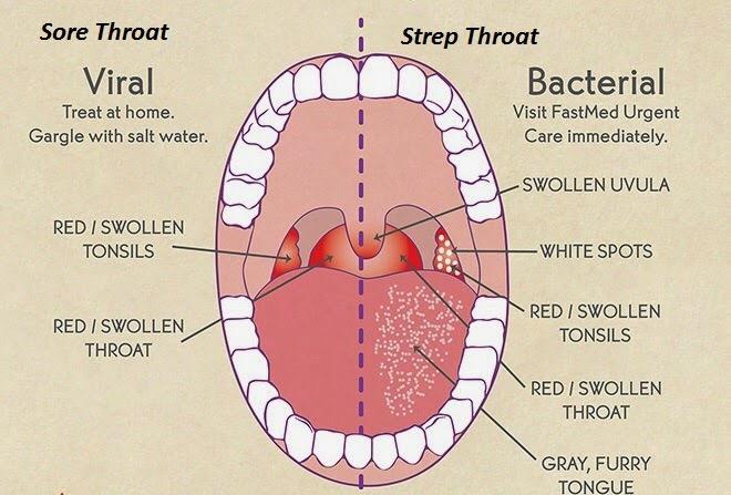 Sore Throat - is it Strep or Something Else? — Family Wellness Tips
