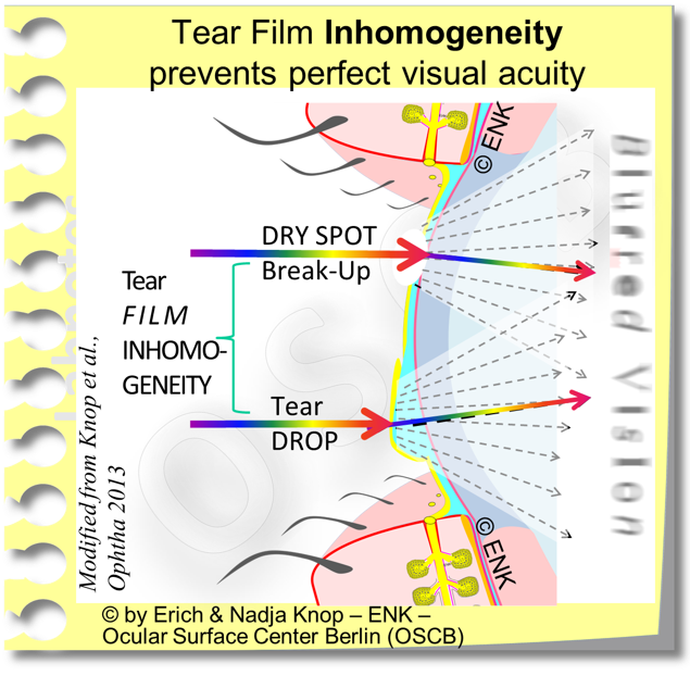 Tear FILM INHOMOGENEITY PREVENTS Perfect Visual ACUITY