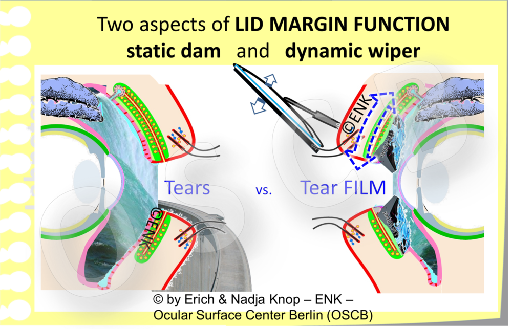 "The Lid Margin can act as a ""STATIC DAM"" and as a ""DYNAMIC WIPER"""