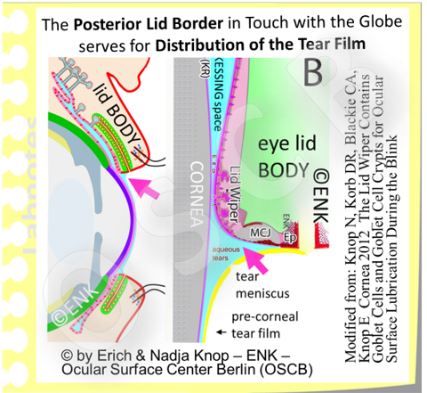 The inner lid border  zones: The MucoCutaneous Junction (MCJ) is the transformation zone from the dry skin-epidermis to the aqueous-wet mucosa NS faces the palpebral fissure. The lid wiper for tear distribution is opposed to in in touch with the globe.