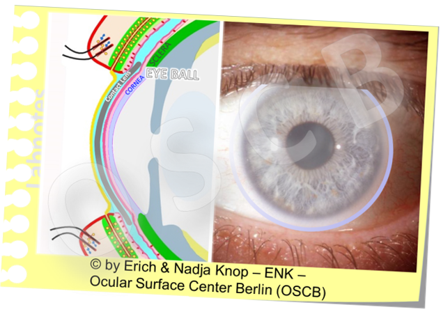 Contact Lenses  (here a soft corneo-scleral lens)  are sitting in the middle of the Ocular Surface Unit  and interact with all components - from the tear film to the tissue - with pros and cons