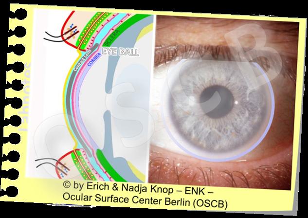KONTAKTLINSEN  befinden sich  mitten in der Funktionseinheit der Augenoberfläche  und stehen damit in ´Berührung´ allen Komponenten der Augenoberfläche - vom Tränenfilm bis zu den Geweben - was Vor- und Nachteile haben kann. Hier ist eine mittelgrosse weiche korneosklerale Kontaktlinse dargestellt.