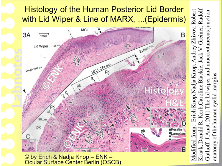 The  histological structure of  the posterior lid margin  shows the proximal  abrupt stop of the epidermis,  detaectable as ending of the anuclear  cornified squames, and the epithelial lip of the lid wiper forming a slope to  the tarsal  side. The MCJ is between them and detectable as a transition zone that gradually develops from basal  cells with different characteristics compared to the epidermis and lid wiper.