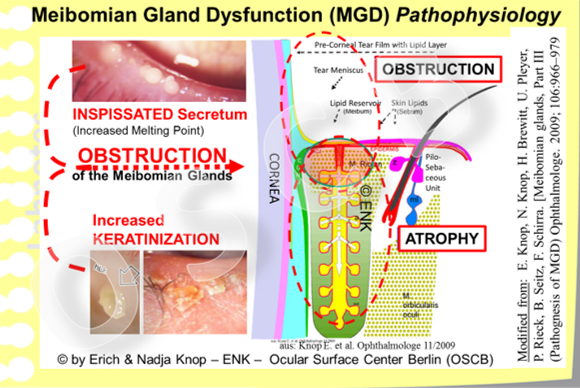 Meibomian Gland Dsfunction (MGD) is the main reason for a deficiency of tear film lipids . In MGD there is a   quantitative  deficiency of lipids  on the lid margin and tear film due to the gland obstruction. At the same time there is  also a  qualitative  deficiency  of lipids because hardened, opaque lipid species of increased melting point occur, as well as irritant free fatty acids with negative influence on the lid margin tissue and on the stability of the tear film.