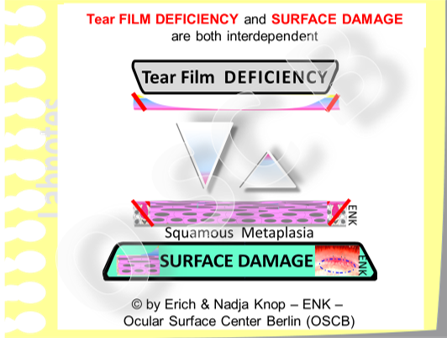 "Tear Film and  and  Ocular Surface Damage  are  closely interrelated and interdependent  - in the normal  physiology  as  well as in  pathology . An intact tear film can only bind bind to an intact epithelial surface and the mucosal surface only remains intact when it is permanently kept moist by the tear fluid. In the  ""typical"" Dry Eye Disease  that the clinician sees in everyday practice  Tear Film Deficiency is typically first  and induces Surface Damage - whereas a  primary Surface Damage is relatively rare  although it may occur in certain conditions."