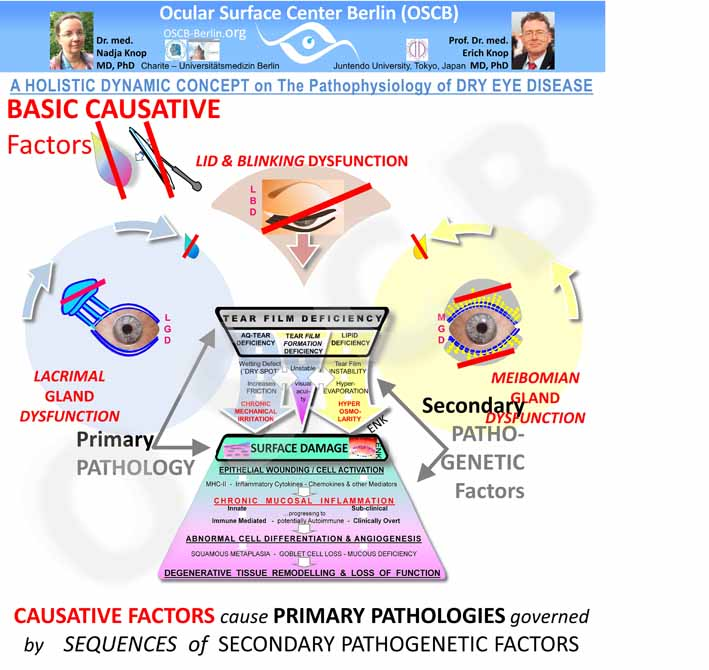 OSCB-Bild_DRY EYE HIERARCHY of Causative Facors cause Primary Patholology governed by Sequences of Secondary Pathogenetic Factors _Folie59_25cm-72dpi.jpg