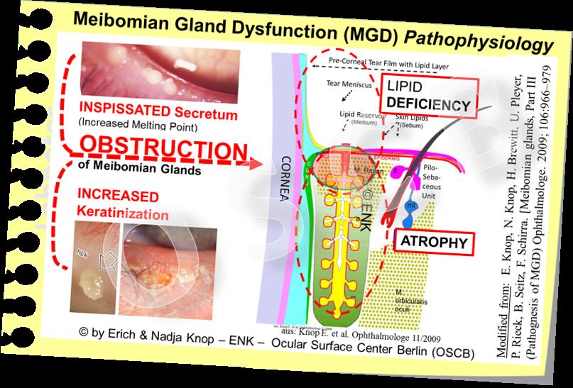 OSCB-Bild_6.0_Dry Eye Disease_MGD_MGD-PATHOPHYSIOLOGY LIDRAND-Schema - ÜBERARBEITET, Ophthhalmologe 2009 .png