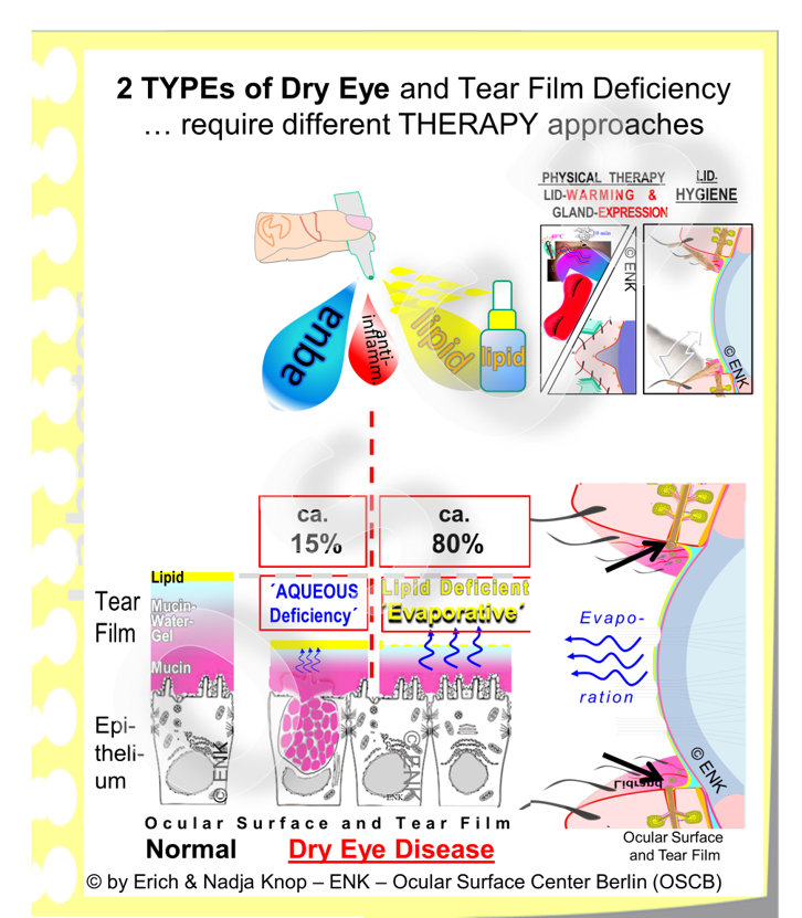 OSCB-Bild_6.0_Dry Eye Disease_TYPEs of Dry Eye and Tear Film Deficiency in Dry Eye Disease.png