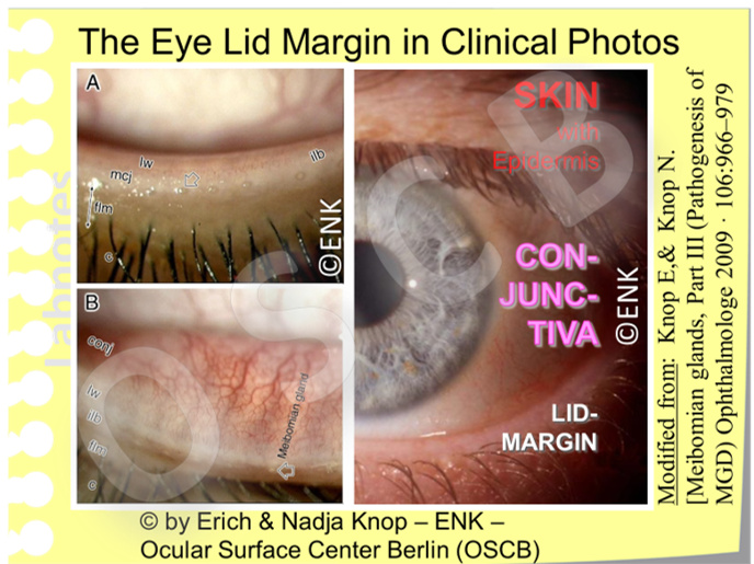 The  extended long gland bodies  of the  MEIBOMIAN GLANDS  can be  seen through the conjunctiva  when the eye lid (here the lower one) is slightly everted. The individual orifices (indicated here by open arrows) are typically arranged in a single row, very close to the posterior lid border - immediately in front of the anterior rim of the tear meniscus.