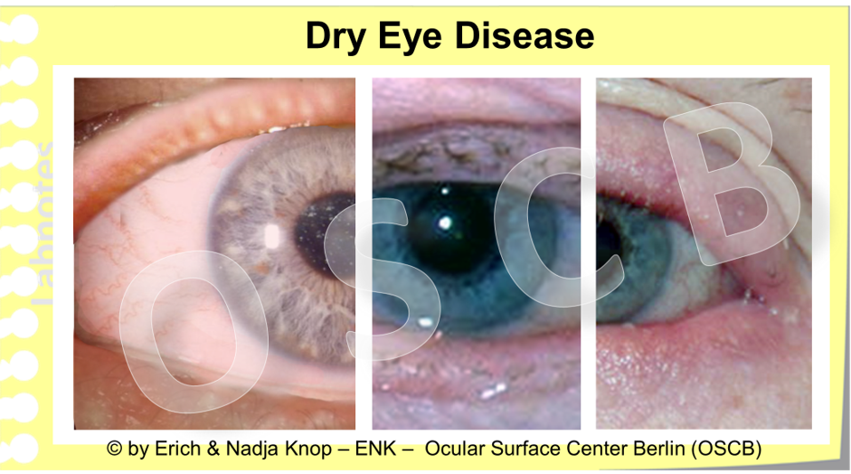 Some   clinical images   of   patients with Dry Eye Disease   - the disease severity increases from left to right including increasing alterations of the lid margin with pouting of Meibomian gland orifices, inflammation, lid margin rounding and irregularity, with loss of eye lashes
