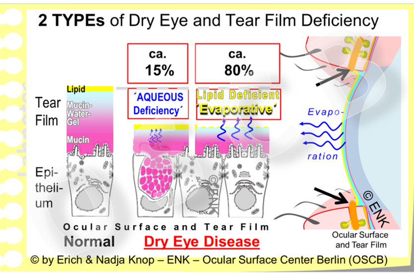 The most frequent types of Dry Eye Disease  are due to a  deficiency  of the  lipid phase  and of the  aqueous phase . Even though the term Dry Eye Disease seems to imply that a loss of water must be more important, the main reason, according to the present data, is a primary deficiency of tear film  lipids  ... which can then lead to a  secondary  loss of water by evaporation.