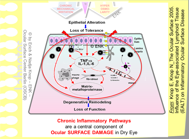 Chronic Inflammatory Pathways  are a central component of the disease process of Dry Eye during  Ocular Surface Tissue Damage . This is induced by the initial epithelial alterations due to tear film deficiency and  may proceed  into an  immune-mediated mucosal inflammation , if it is not interrupted by therapeutic intervention,  to  a  Degenerative Tissue Remodelling with Loss Of Function .