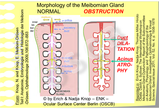 In contrast to the schematic morphology of a normal Meibomian gland (right side) an OBSTRUCTED gland in MGD (left side) typically has signs of  dilatation of the ducts  and an  atrophic destruction of the secretory acini  due to the  increased pressure inside the blocked gland  that can not get out its oily secretum.