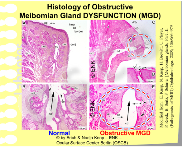 Histological Studies of the Ocular Surface Center Berlin (OSCB) have revealed some typical alterations of Meibomian Glands in MGD (right) compared to normal glands (left).  This concerns an obstruction of the orifice by keratinized material (top right) and signs of gland atrophy (bottom right). This is explained in more detail for the higher resolution image below.