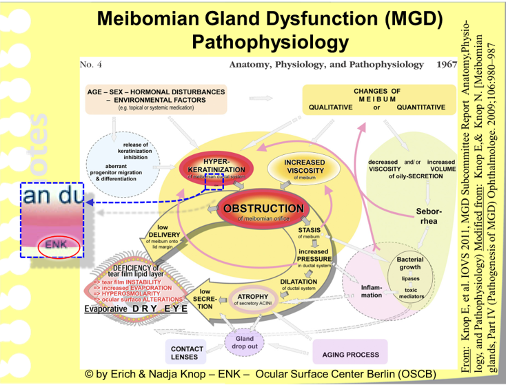 The  Summary Figure of the TFOS MGD Workshop Report  summarizes the main factors in the Pathophysiology of MGD - and thus explains, which pathogenetic factors contribute to the onset and worsening of MGD and how they interact in this process.