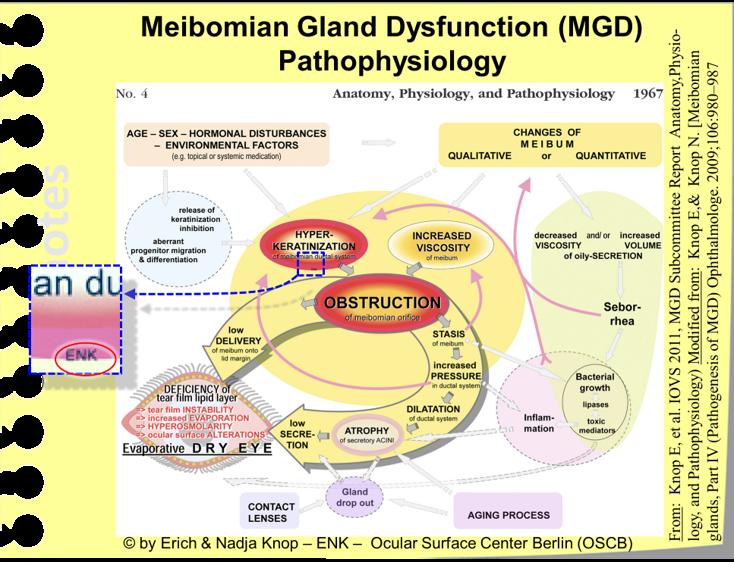 Die Zusammenfassungs-Abbildung des TFOS MGD Workshop fasst die Hauptfaktoren bei der Krankheitsentwicklung der MDD zusammen und erklärt daher welche Faktoren zum Auftreten und bei der Verschlimmerung der Erkrankung beteiligt sind und wie sich diese Faktoren dabei gegenseitig beeinflussen.