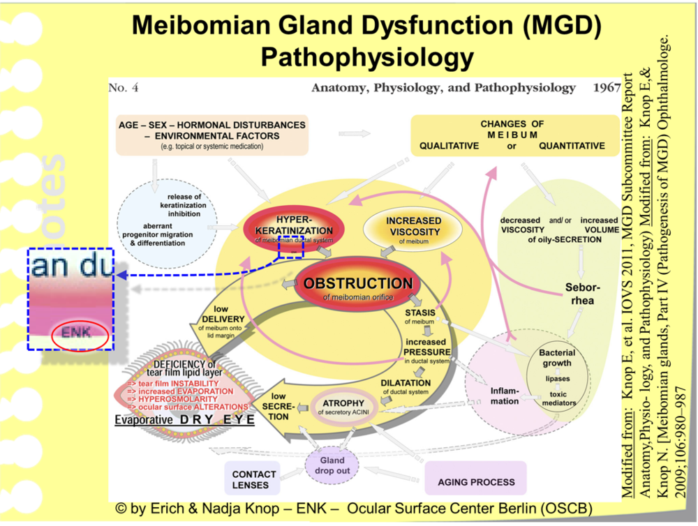 The Summary Figure for the TFOS MGD Report   was   prepared by Members of the Ocular Surface Center Berlin (OSCB)   and summarizes   important pathogenetic factors in one diagram   that is   intuitively understandable  . The main pathogenetic factors are   Hyperkeratinization   of the epithelium together with   Increased Viscosity   of the Secretum that can result, together or alone, in   Meibomian Gland Obstruction  . Further factors of importance, as well as their interaction ... are explained in the text to the left side of this diagram.