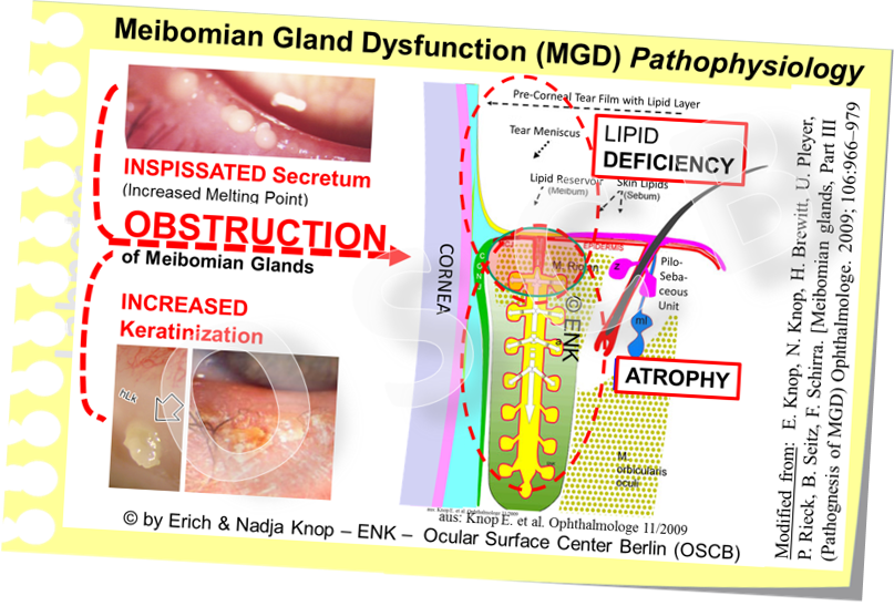 The main pathogenetic factors for obstructive Meibomian Gland Dysfunction are an inspissation of the lipid secretum due to increase melting point and a hyperkeratinization of the ductal system and lid margin.