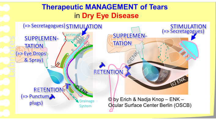 "... two sides of the same coin show that the  MANAGEMENT OF TEARS   and their deficiency, respectively, at the Ocular Surface can dissected into different steps which are: (1) The  STIMULATION  of natural tear flow by secretagogues, (2) the  SUPPLEMENTATION  of tear components either as individual components such as e.g. just lipids, or as a kind of complete solution as "" Artificial Tears "", and (3) the  RETENTION  time of the tear fluid at the Bulbar Surface before they disappear and drain into the lacrimal drainage system ... which also is a p art of the Ocular Surfac e but can no longer k eep the cornea and conjunctiva mois t."