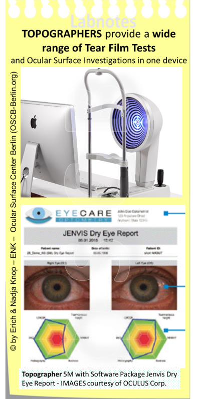 Topographers provide a wide array of Tests and Investigations for the Ocular Surface and Tear Film and can thus not only assist in the Diagnosis of Dry Eye Disease but also in e.g. contact lens fitting by measuring the ocular surface Topography. The Oculus Topographer 5M is available with an advanced software package termed as´Dry Eye Report´from Jenvis, Jena Germany. This allows to fill in the complete Dry Eye Data Set including the questionnaire and ´digests´ the data into a graphic visualized report representation that allows even the novice in the field to perform a thorough and understandable Dry Eye Diagnosis.