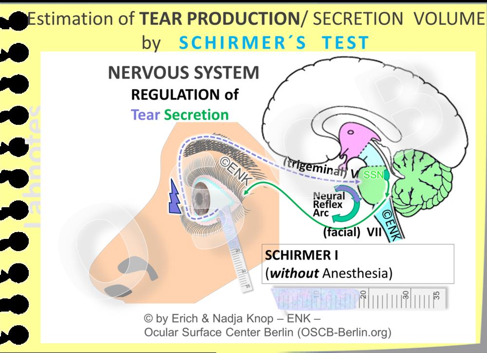 Der originale Schirmer Test ( SCHIRMER-1  Test) sammelt die Tränen, die während einer Zeit von  5 Minuten ohne Anästhesie  gebildet werden.