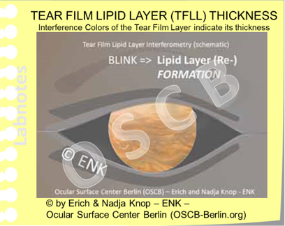 Die schematische Abbildung der  normalen Tränenfilm LIPIDSCHICHT  in der  INTERFEROMETRIE Darstellung  zeigt ein unregelmässig durchmischtes Muster verschiedener Farben mit einer überwiegend rötlich-goldenen Farbe. Diese Interferenzfarben sind typischerweise am besten zu sehen wenn die Umgebungs-beleuchtung reduziert wird. Fotos von echten Tränenfilm Interferometrie sind weiter unten zu sehen..