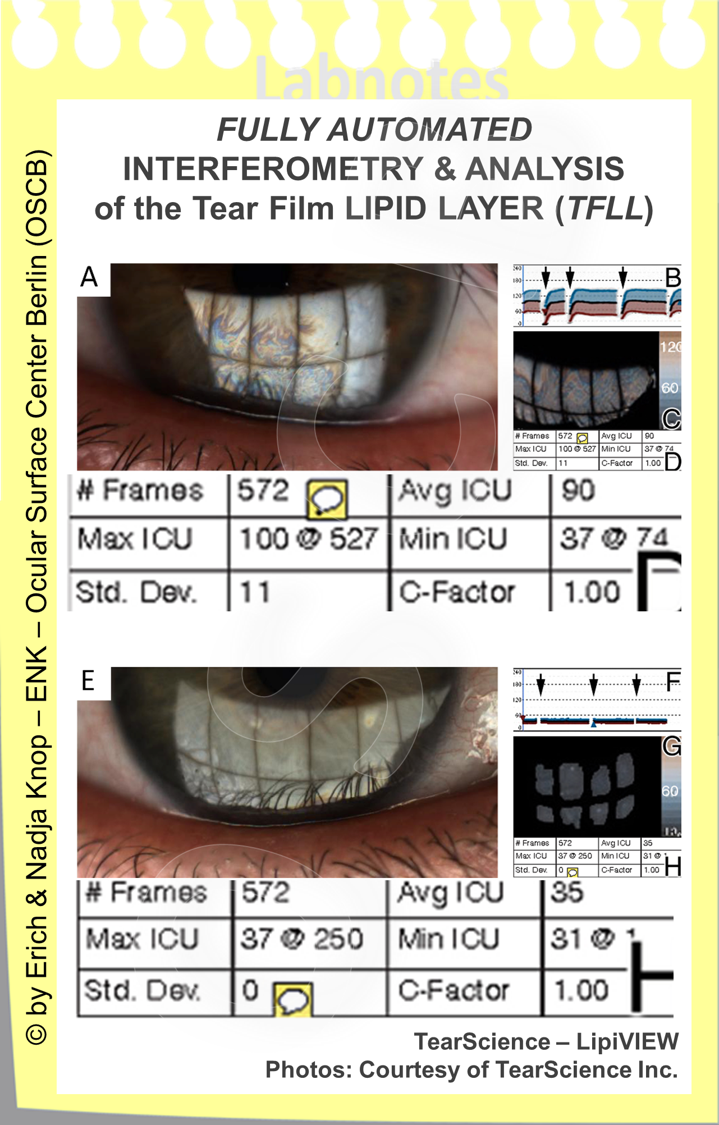 A  very exact ANALYSIS of the Tear Film LIPID LAYER  is possible by the LipiVIEW and the LipiSCAN devices (from TearScience Inc.). The interferenceimage is optained over a wide area and is automatically analysed. Over a time of approximately 30 seconds various parameters are measured such as the minimal, maximal and median Thickness of the Lipid Layer and in addition the Blinks are recorded in order to see partial blinks. The devices can also analyse the morphology of the Meibobmian glands by non-contact MEOBIGRAPHY.