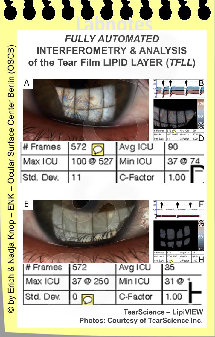 Eine sehr EXAKTE ANALYSE der Tränenfilm Lipidschicht ist mit den LipiVIEW und den LipiSCAN Geräten möglich. Das Interferenzbild wird über eine grosse Fläche dargestellt und automatisch vermessen. Über einen Beobachtungs-zeitraum vom ca. 30 Sekunden werden verschiedene Parameter wie minimale, maximale und durchschnittliche Dicke der Lipidschicht ermittelt und zusätzlich der Lidschlag aufgezeichnet um inkomplette Lidschläge zu erkennen. Ausserrdem ist mit diesen Geräten auch die Analyse der Meibomdrüsen (Meibographie) möglich.