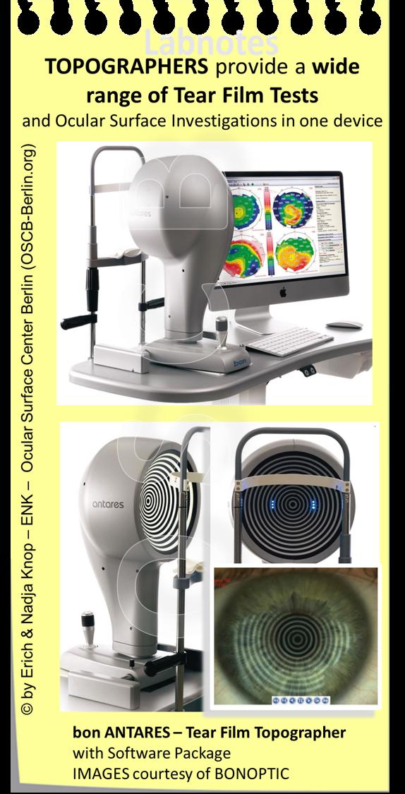 TOPOGRAPHER sind Allzweckgeräte  die typischerweise mit verschiedenen Beleuchtungssystemen ausgestattet sind für verschiedene Untersuchungen. Sie sind verbunden mit einem Computer und im wesentlichen gesteuert von einer entsprechenden Software für die Auswertung und Speicherung der Bilder und Befunde. Sehr nützlich für die Diagnostik des Trockenen Auges ist sicherlich die Möglichkeit, der  Nicht-Invasiven Tränenfilm Aufbruchszeit  ( NI-BUT ) Bestimmung, die die Analyse des Tränenfilms und seiner Lipidschicht ohne vorherige Veränderung durch Farbstoffe oder andere Substanzen ermöglicht.
