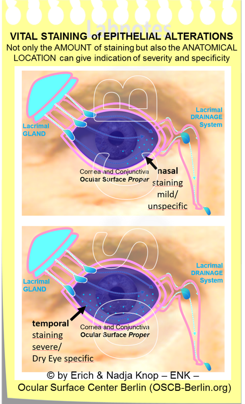The  severity of ocular surface staining  that occurs due to pathological epithelial alterations is typically determined according to the   amount   of stained cells. The  location  also appears to have some significance because nasal staining (top image) is typically mild and unspecific, whereas temporal staining (bottom image), i.e. in a location where the fresh tears pour out of the excretory lacrimal ducts into the conjunctival sac, typically indicates a more severe condition and is somewhat specific for Dry Eye Disease (Schematic drawings according to observations of  UCHIYAMA and colleagues 2009 ).
