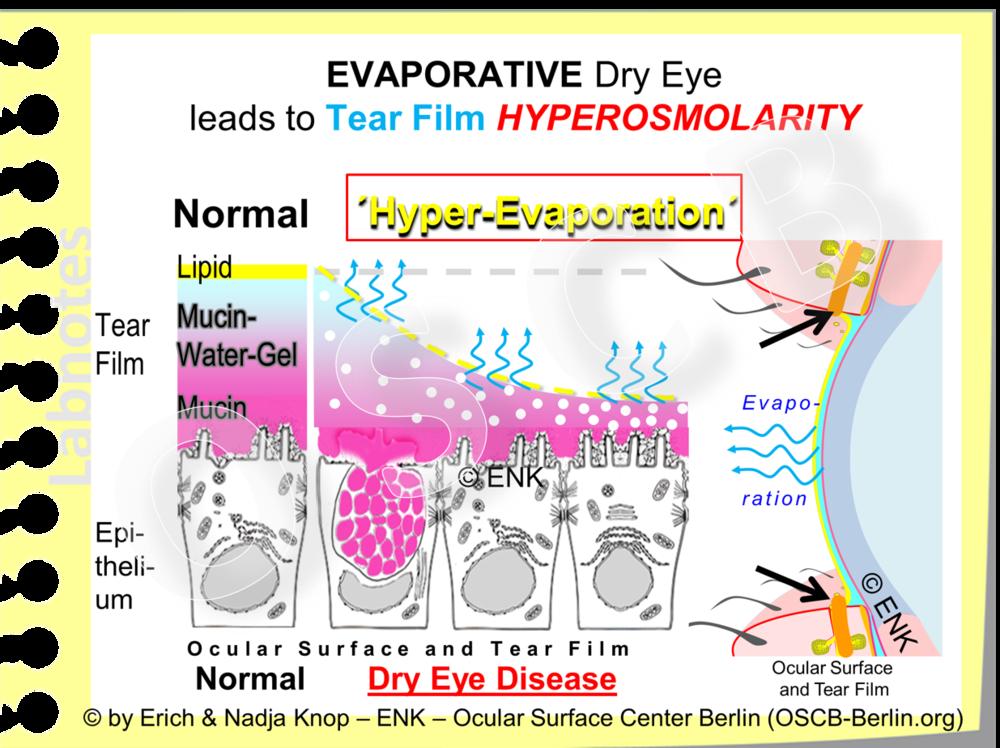 Zustände der Augenoberfläche bei denen ein  LIPID-MANGEL  mit einem entsprechenden  MANGEL der Tränenfilm LIPIDSCHICHT  vorkommt führen zu einem  Verlust der Fähigkeit die Wasserverdunstung zu hemmen . Daher verdunstet (blaue gewellte Pfeile) der Wasseranteil der wässrigen Tränenflüssigkeit schnell und lässt die darin gelösten Salze und Proteine (beides als helle Punkte dargestelllt) in der restlichen Tränenflüssigkeit zurück. Die Folgen davon sind: (1)  ein Mangel an Tränenvolumen  und daher auch eine  reduzierte Höhe des  Tränenmeniskus   sowie eine verminderted ´Schmierung´ mit  erhöhter mechanischer Reibung (Friktion) . Weiterhin entsteht(2) durch eine erhöhte Konzentration der Salze ( relativ  mehr Partikel pro Volumen) eine  erhöhte Osmolarität der verbleibenden Tränenflüssigkeit , so dass die Tränen Hyper-Osmolar werden. Diese hyper-osmolaren Tränen üben einen ´wasser-anziehenden´  osmotischen Stress-Effekt  auf die darunter liegenden Epithelzellen aus. Dies stellt einen  inflammatorischen Stimulus  dar, der zur Zellschädigung und zum Entstehen einer erst akuten und, bei Fortdauer, später einer chronischen Entzündung führen kann. Dies ist ein etabliertes Konzept für die Entstenhung eines chronischen Trockenen Auges.
