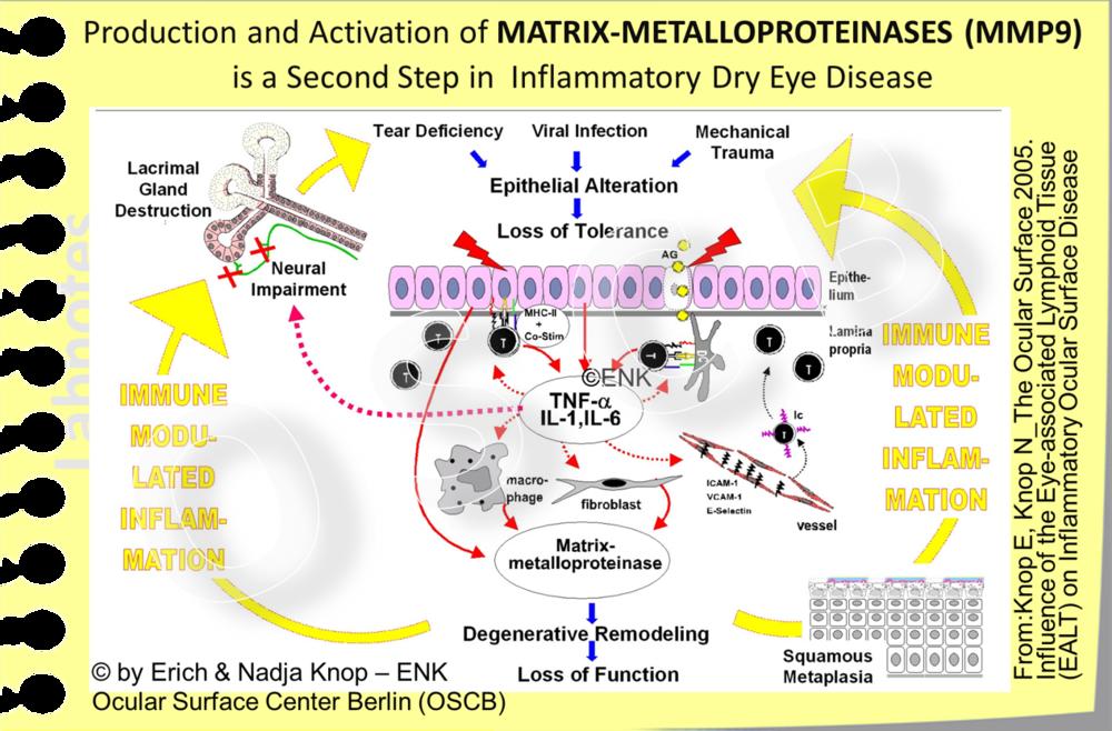Diese schematische Abbildung stellt die wesentlichen Schritte bei der Entstehung einer chronischen Schleimhautentzündung an der Augenoberfläche dar. Nach einer Störung des Oberflächenepithels setzt dies über die Freisetzung von Entzündungsmediatoren eine Abwehrreaktion in Gang, die aus einer Entzündung besteht um den pathologischen Reiz ´unschädlich´zu machen. Dies löst eine Kette sekundärer Reaktionen aus wie (1) die Erhöhung von Molekülen zur Antigen-Präsentation und (2) von Adhäsionsmoleküle, die weitere Zellen aus den Gefässen in das Gewebe holen und ihnen dort ihren Zerstörungsweg weisen, sowie (3) die Aktivierung von Protein-auflösenden Enzymen (Matrix-Metalloproteinasen, vor allem MMP9), in der guten Absicht den Entzündungszellen ausreichend Platz bei Ihrer Arbeit zu verschaffen.  All dies wäre kein grosses Problem, wenn die Reizung nur vorübergehend aber nicht chronisch andauernd wäre - wie dies beim Trockenen Auge aber typischerweise leider der Fall ist. Daher ist die typische Entwicklung die, dass sich die als Abwehrreaktion inszenierte akute Entzündung zu einer chronischen Schleimhautentzündung mit Immunmodulation durch lymphatische Zellen entwickelt, die ein normaler und eigentlich protektiver Bestandteil des Gewebes sind.