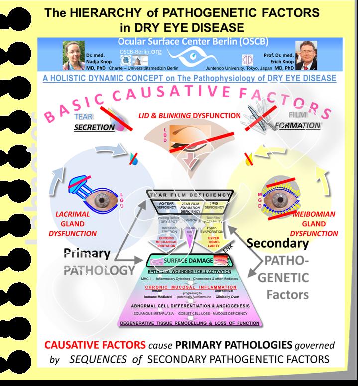 Diese schematische Abbildung stellt den gesamten  Ablauf der Pathophysiologie des Trockenen Auges  dar - wie er im neuen  HOLISTISCHEN DYNAMISCHEN KONZEPT  entwickelt wird.  Kurz gesagt: Grundlegende KAUSATIVE FAKTOREN , die  die Bildung eines Tränen-FILMS beeinträchtigen  - entweder weil durch Drüsenprobleme zu wenig Tränenbestandteile gebildet werden und/oder weil durch Blinzel-Störungen kein stabiler FILM aus vorhandenen Tränen gebildet werden kann -  führen zur PRIMÄREN PATHOLOGIE der TRÄNENFILMSTÖRUNG .  Diese löst dann  durch die Sekundäre Faktoren, u.a. die hier betrachtete Hyperosmolarität,  eine SCHÄDIGUNG des GEWEBES der Augenoberfläche aus  die zur betrachteten CHRONISCHEN ENTZÜNDUNG führt.